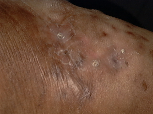 Skin rash with cutaneous tracks  Jill scott insomnia