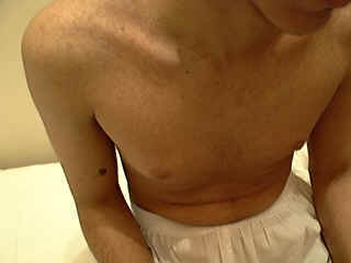 Erythema Infectiosum Adults