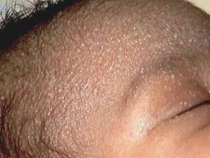 Current diagnosis of guttate, erythrodermic, exfoliative or pustular psoriasis 2
